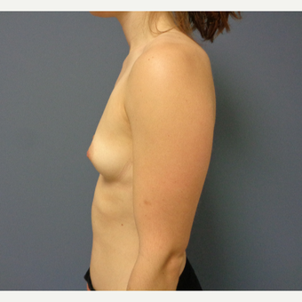 25-34 year old woman treated with Breast Augmentation before 3747018