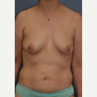 "Nipple Sparing Mastectomy and ""Scarless"" Latissimus/Expander Breast Reconstruction before 1859038"