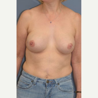 "Nipple Sparing Mastectomy and ""Scarless"" Latissimus/Expander Breast Reconstruction after 1859038"