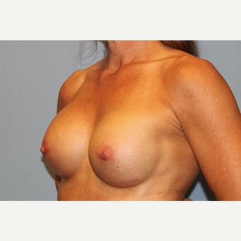 45-54 year old woman treated with Breast Augmentation after 3569551
