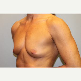 45-54 year old woman treated with Breast Augmentation before 3569551