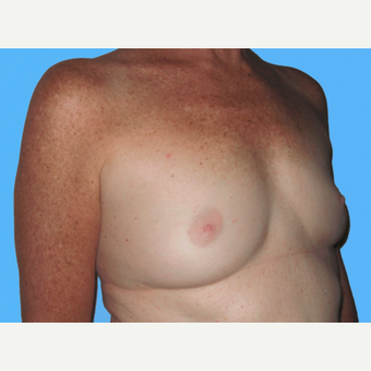 Breast Augmentation before 3732432