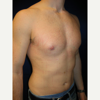 35-44 year old man treated with Male Breast Reduction after 3727275