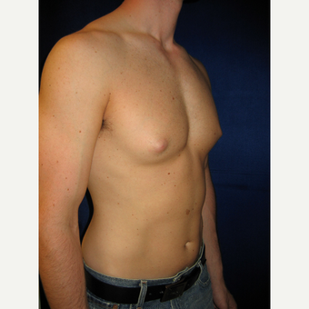 35-44 year old man treated with Male Breast Reduction before 3727275
