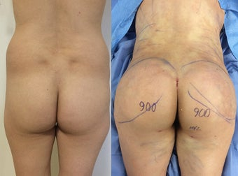 Brazilian Butt Lift - For Square Deformity before 1511901