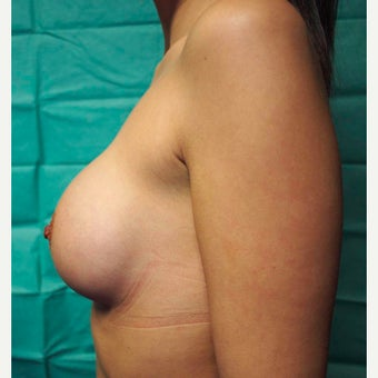 25-34 year old woman treated with Breast Augmentation 1654431