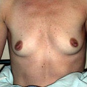 Breast Augmentation before 214434