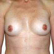 Breast Augmentation after 214434