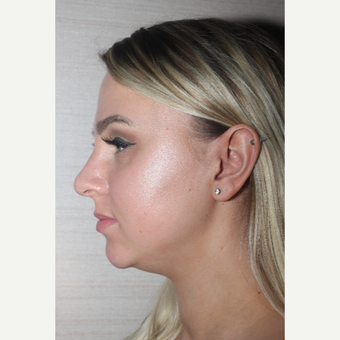 18-24 year old woman treated with Rhinoplasty after 3629465