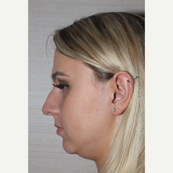 18-24 year old woman treated with Rhinoplasty before 3629465