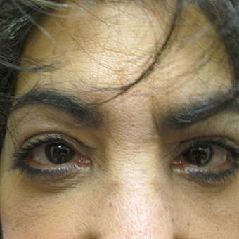 55-64 year old woman treated with Eye Bags Treatment after 3605365