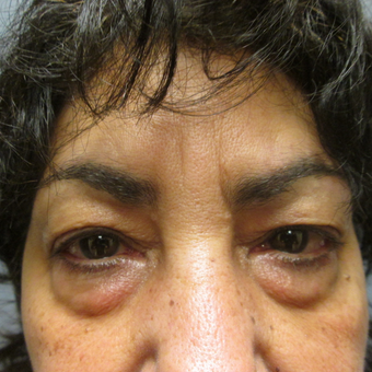 55-64 year old woman treated with Eye Bags Treatment before 3605365