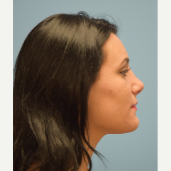 18-24 year old woman treated with Rhinoplasty after 3482890