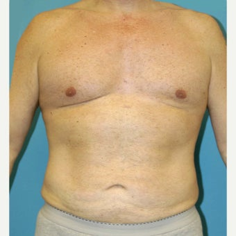 55-64 year old man treated with Liposuction after 1828970