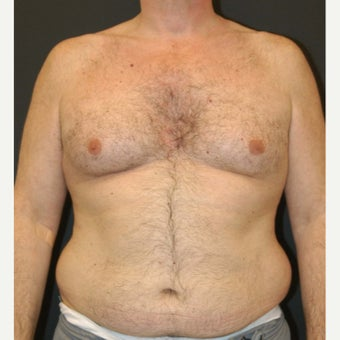 55-64 year old man treated with Liposuction before 1828970