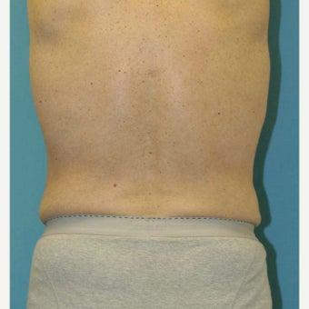55-64 year old man treated with Liposuction 1828970