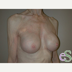 Breast Implant Revision after 3373460