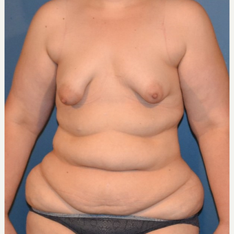 35-44 year old woman treated with Breast Fat Transfer before 3132099