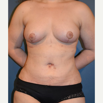 35-44 year old woman treated with Breast Fat Transfer after 3132099