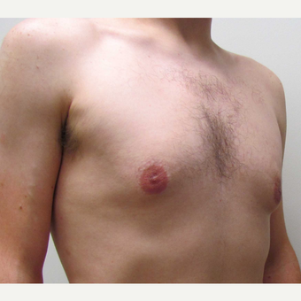 Male Breast Reduction for this 25 Year Old Man before 3042766