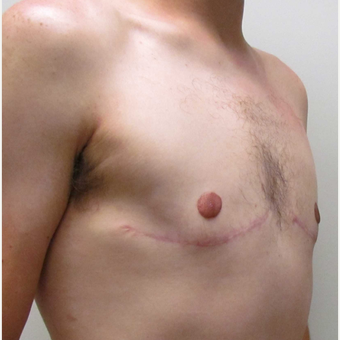Male Breast Reduction for this 25 Year Old Man after 3042766