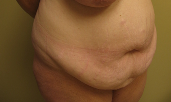 45-54 year old woman treated with Tummy Tuck before 3809884