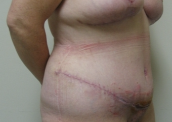 45-54 year old woman treated with Tummy Tuck after 3809884