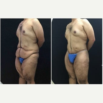 25-34 year old man treated with Body Lift