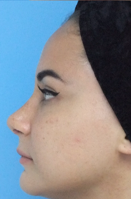 35-44 year old woman treated with Rhinoplasty after 3826200