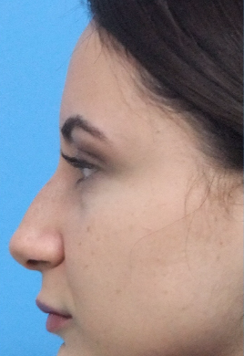 35-44 year old woman treated with Rhinoplasty before 3826200