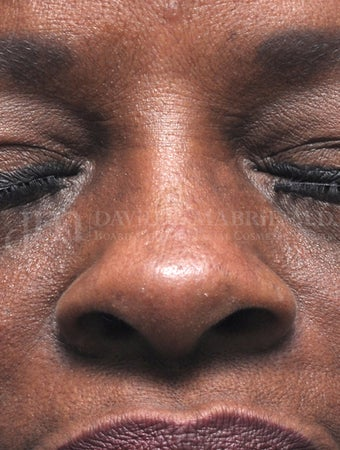 Woman treated with Non Surgical Nose Job 1538943