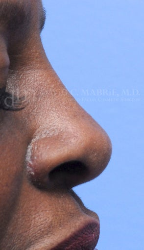 Woman treated with Non Surgical Nose Job