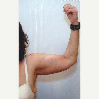 55-64 year old woman treated with Arm Lift after 1616230