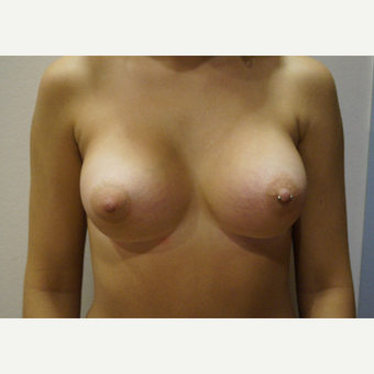 25-34 year old woman treated with Breast Augmentation after 3703669