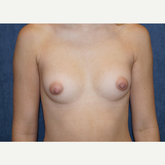 25-34 year old woman treated with Breast Augmentation before 3703669