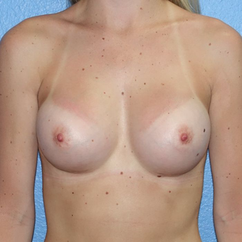 25-34 year old woman treated with Breast Augmentation after 3400603