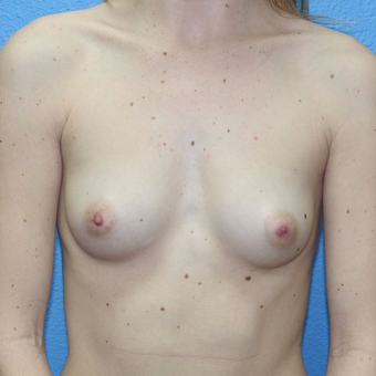 25-34 year old woman treated with Breast Augmentation before 3400603