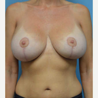 45-54 year old woman treated with Breast Lift with Implants after 3305144