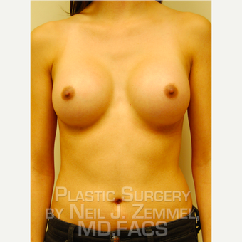 18-24 year old woman treated with Breast Augmentation after 2842502
