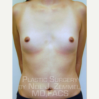 18-24 year old woman treated with Breast Augmentation before 2842502