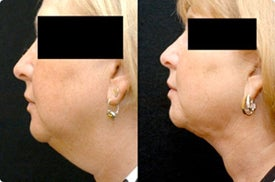 Smart Lipo: Chin Area before 989024