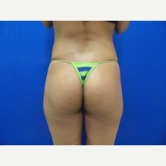 25-34 year old woman treated with Butt Implants before 2357970