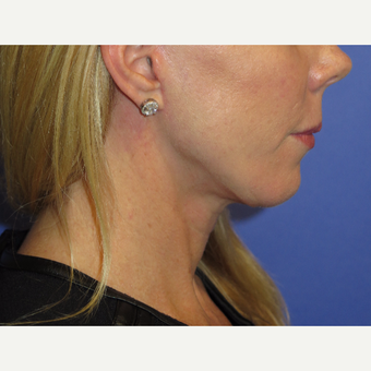 47 year old woman treated with Neck Lift after 3054258