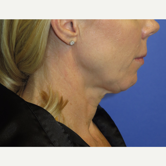 47 year old woman treated with Neck Lift before 3054258