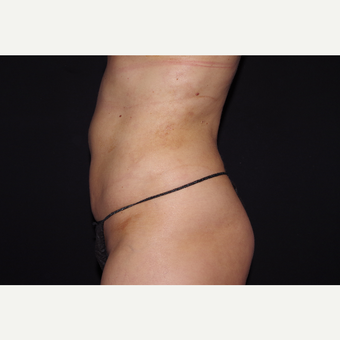 25-34 year old woman treated with Liposuction after 3055083
