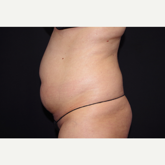 25-34 year old woman treated with Liposuction before 3055083