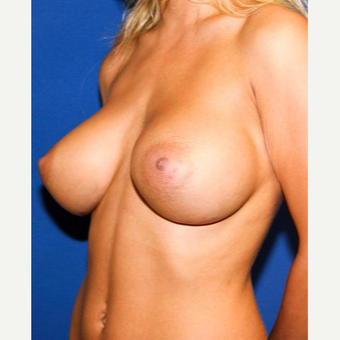 25-34 year old woman treated with Breast Augmentation after 3032956