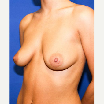 25-34 year old woman treated with Breast Augmentation before 3032956