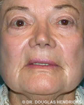 Woman treated with Laser Resurfacing