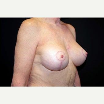 55-64 year old woman treated with Breast Lift with Implants; 5 months post-op after 2675433